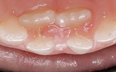 ¿Sabías qué… ? La erupción del primer diente